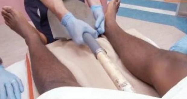 [Vidéo] Un homme empalé sur une pelle